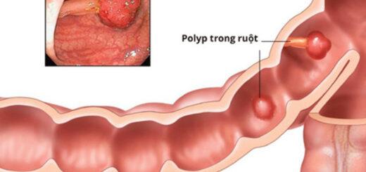 polyp dai trang ben trong ruot 3
